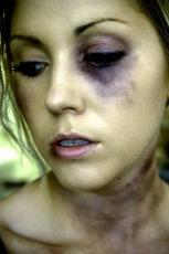 Bruises_