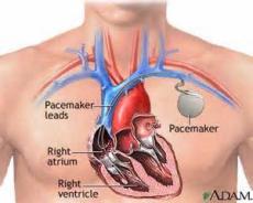 Wikicardia