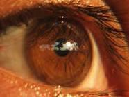 His Big Brown Eyes