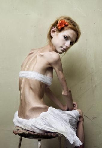 anorexic models Hoping to ban models deemed excessively thin, france passed a bill that requires models to have a doctor's note saying they are a healthy weight before working.