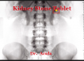 Kidney Stone Tablet