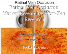Retinal Vein Occlusion Market Research Report-Ken Research