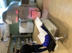 Radiation Therapy (Stage II)