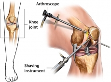 Arthroscopy Devices Market Projections, Future Opportunities Recorded for the Period until 2030
