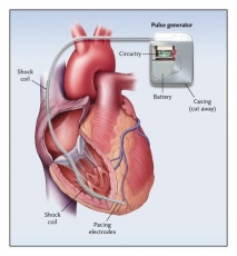 Implantable Defibrillators Market Development Strategy, Emerging Technologies, Competitive Landscape and Potential of Industry till 2030