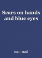 Scars on hands and blue eyes