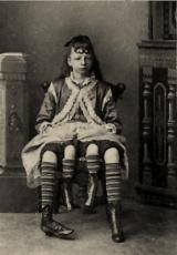 Photo of The Fourlegged Woman